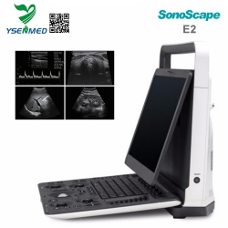 Sonoscape E2 Portable Color Doppler Ultrasound Machine For Sale
