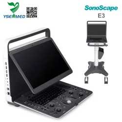 Sonoscape E3 Portable Color Doppler Ultrasound Machine For Sale