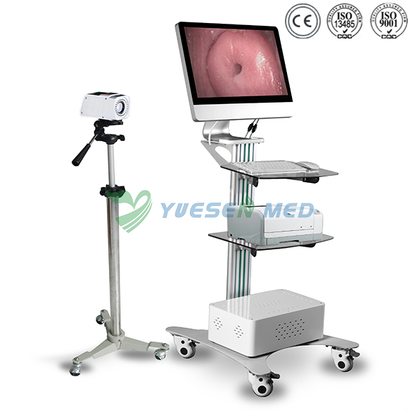 Digital optical colposcope YSSW3303